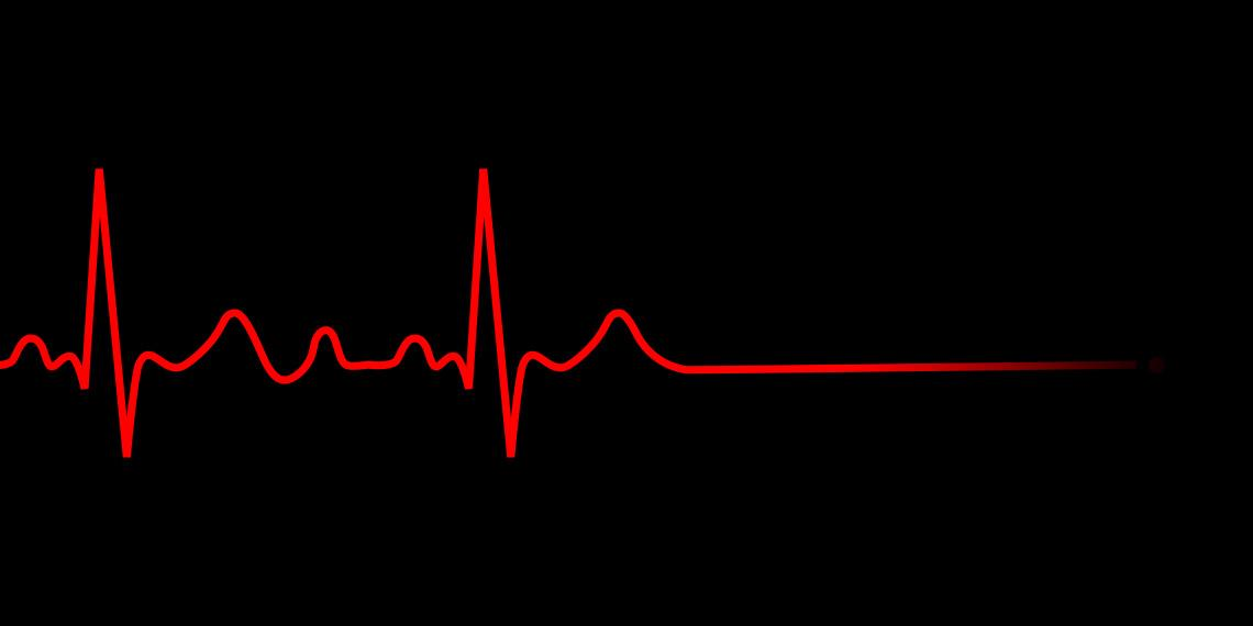 ECG flatline